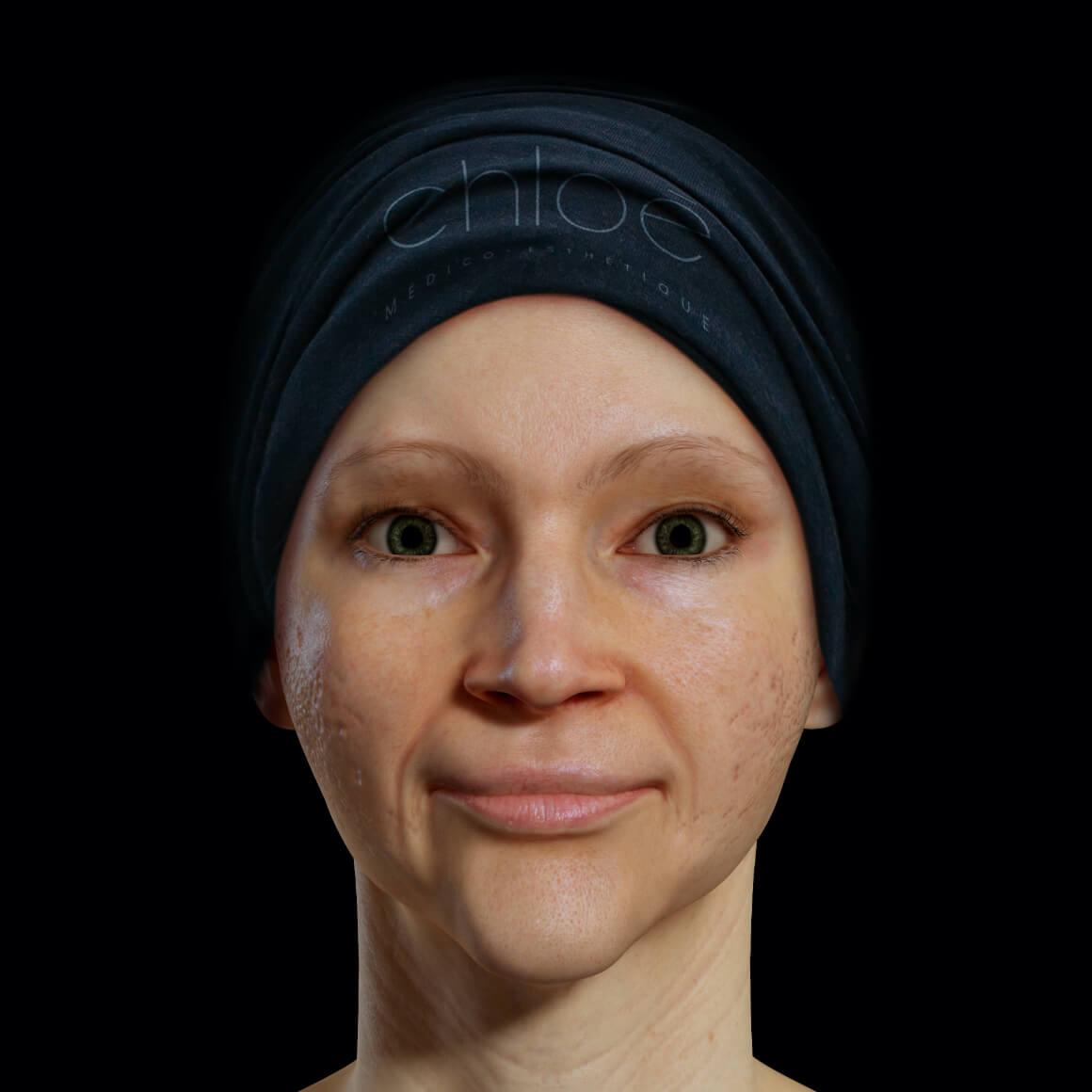 Patiente de la Clinique Chloé positionnée de face ayant des cicatrices d'acné sur le visage