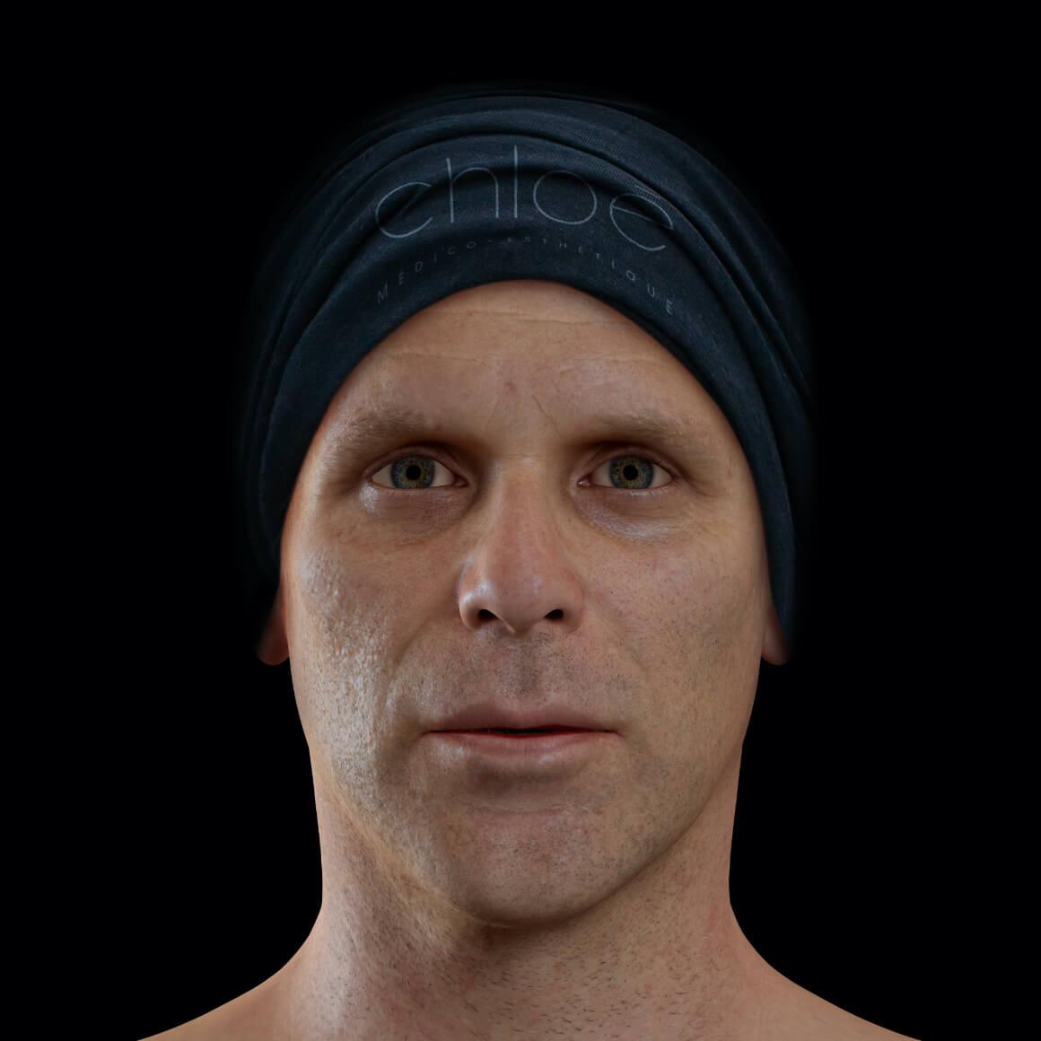 Patient de la Clinique Chloé de face après des traitements de microneedling pour traiter des cicatrices d'acné au visage