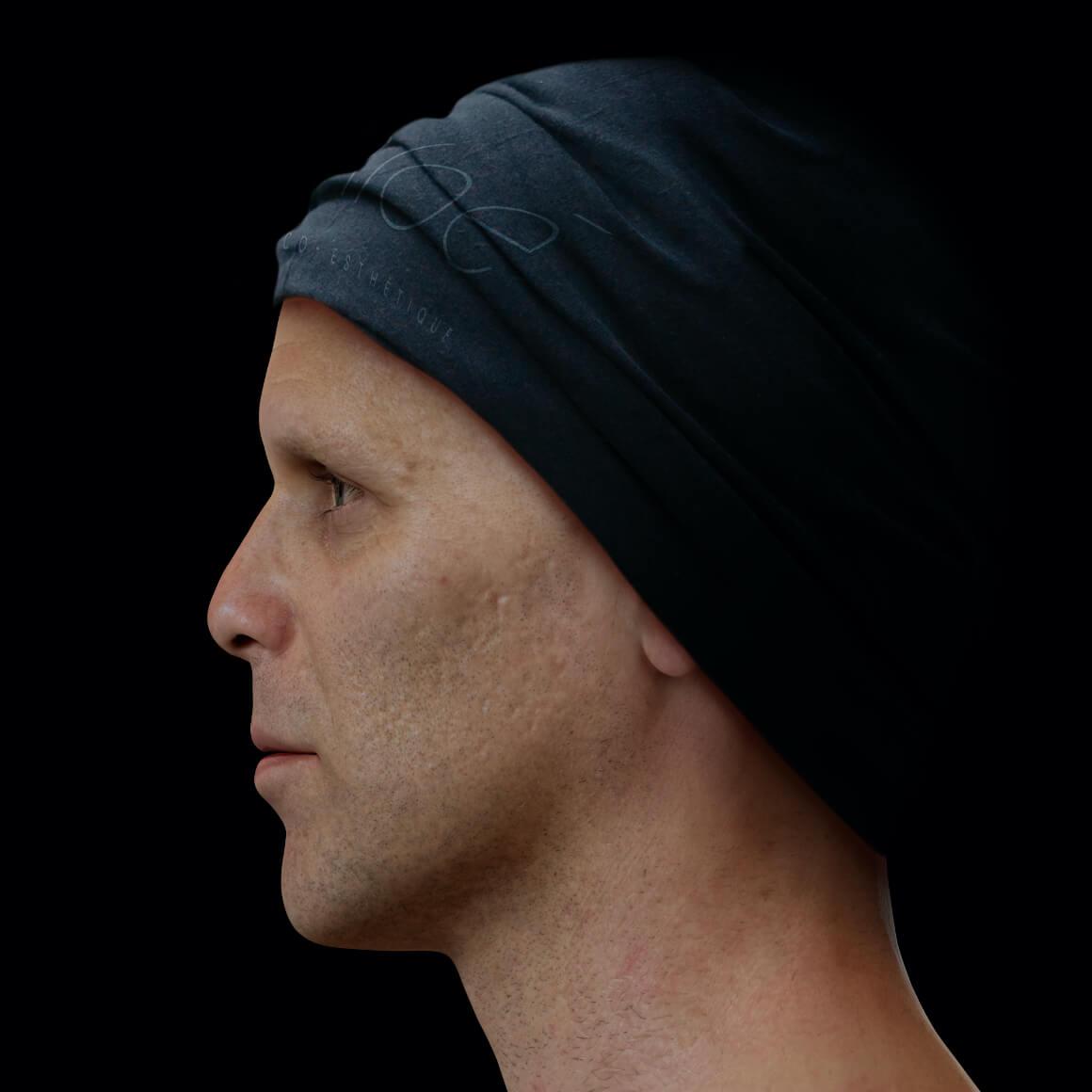 Patient de la Clinique Chloé de côté après des traitements de microneedling pour traiter des cicatrices d'acné au visage