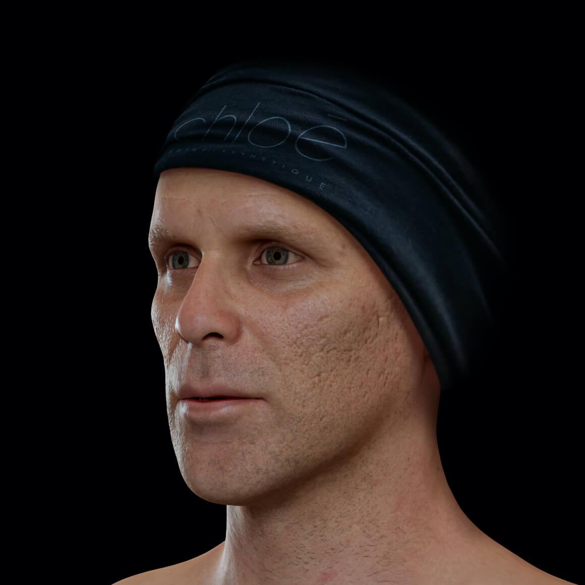 Patient de la Clinique Chloé positionné en angle ayant des cicatrices d'acné sur le visage