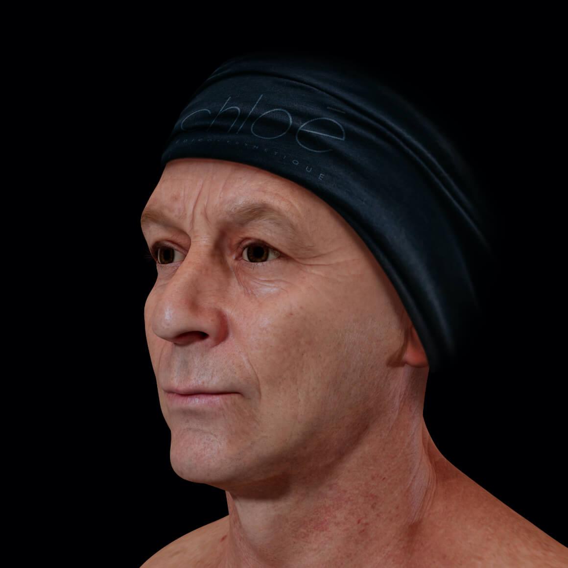Patient de la Clinique Chloé en angle après des traitements Venus Viva pour traiter des cicatrices d'acné