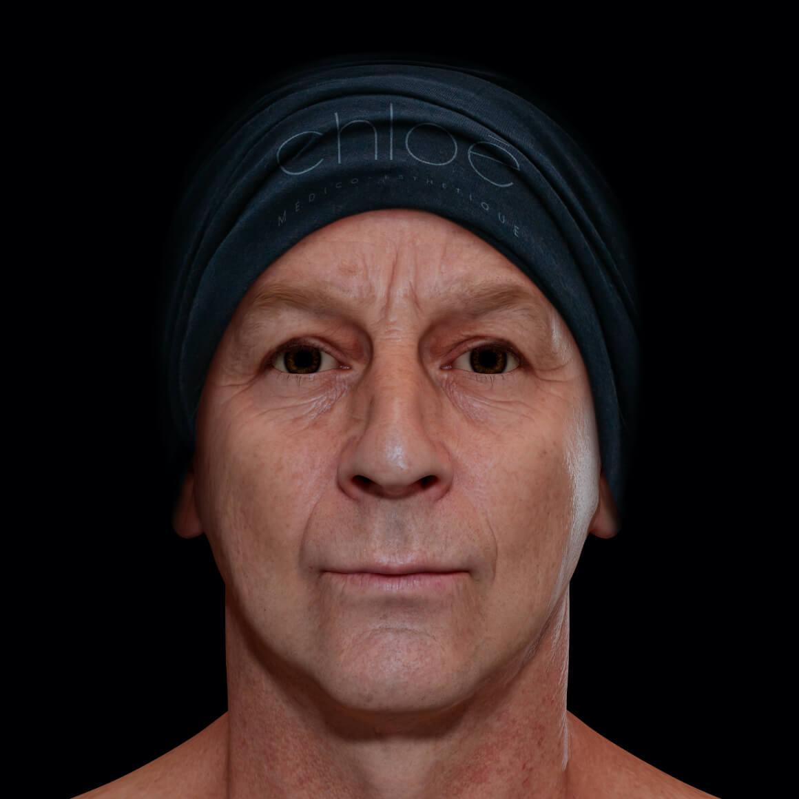 Patient de la Clinique Chloé de face après des traitements Venus Viva pour traiter des cicatrices d'acné