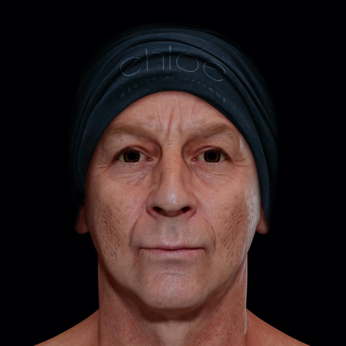 Patient de la Clinique Chloé positionné de face ayant des cicatrices d'acné sur le visage