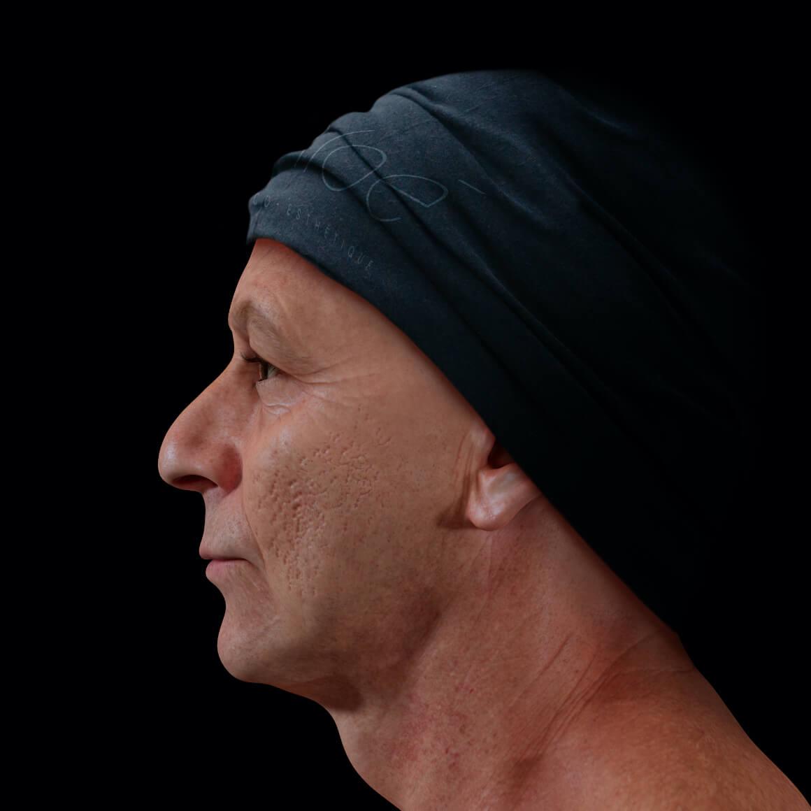 Patient de la Clinique Chloé positionné de côté ayant des cicatrices d'acné sur le visage