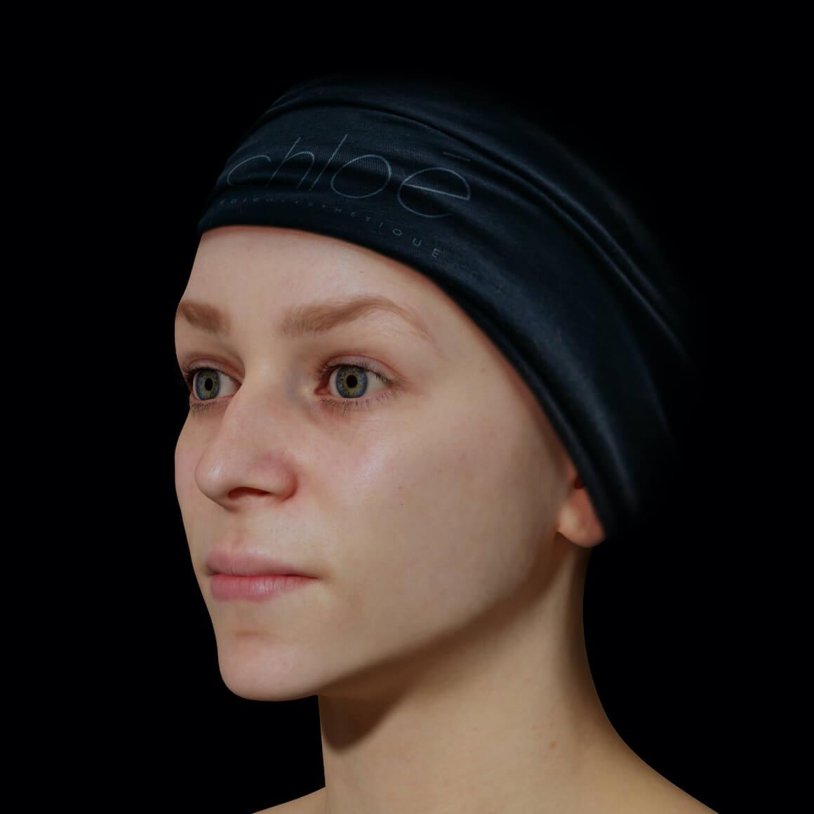 Une patiente de la Clinique Chloé vue en angle après des injections d'agents de comblement pour la définition de la mâchoire