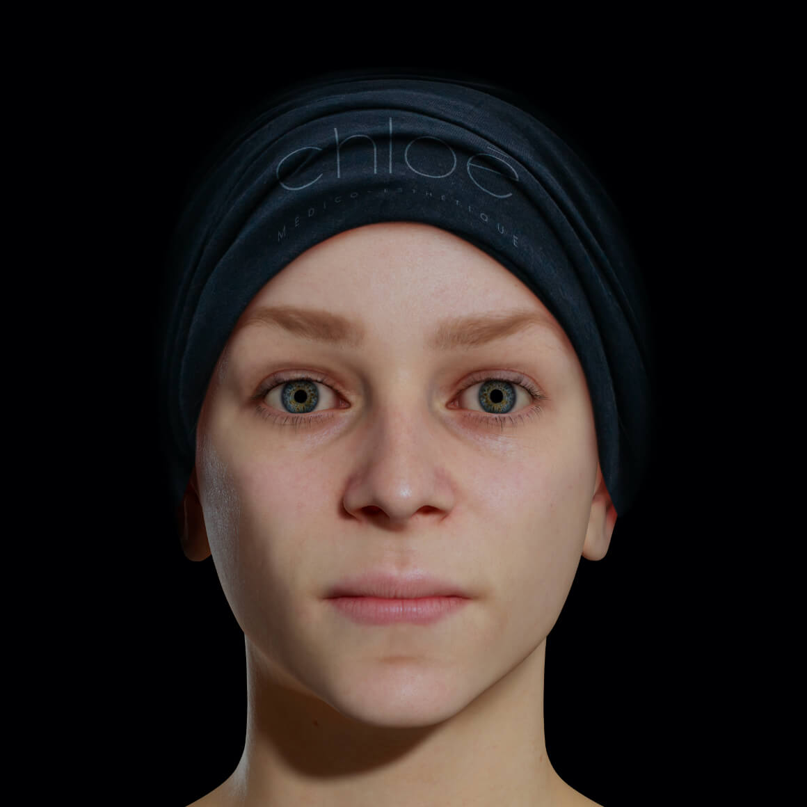 Une patiente de la Clinique Chloé vue de face après des injections d'agents de comblement pour la définition de la mâchoire