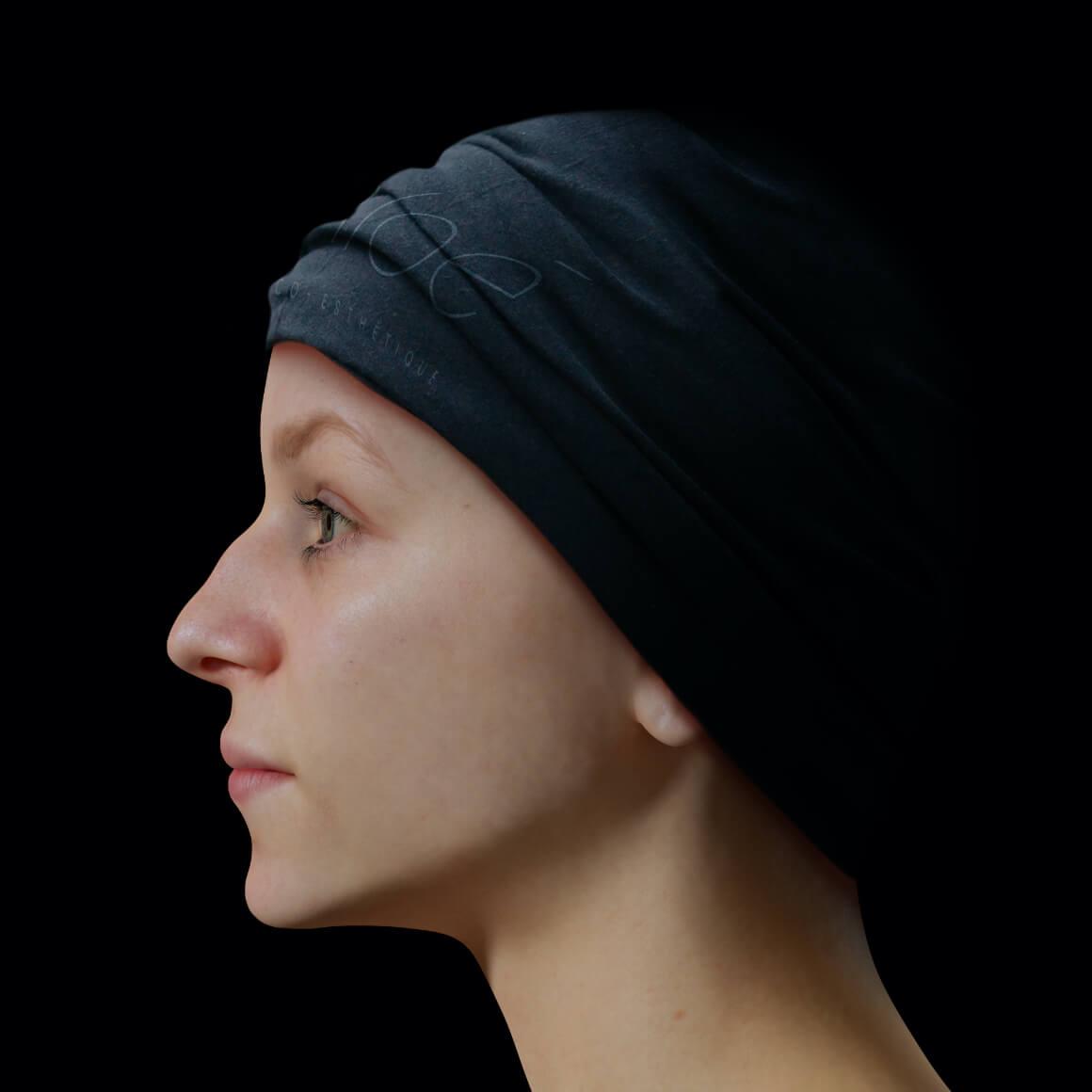 Une patiente de la Clinique Chloé vue de côté après des injections d'agents de comblement pour la définition de la mâchoire