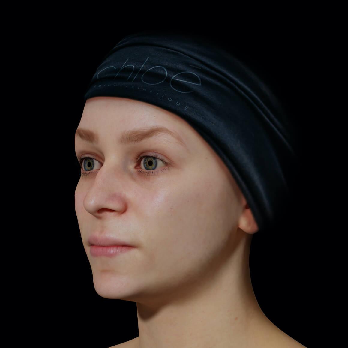 Une patiente de la Clinique Chloé avec une mâchoire peu définie vue en angle