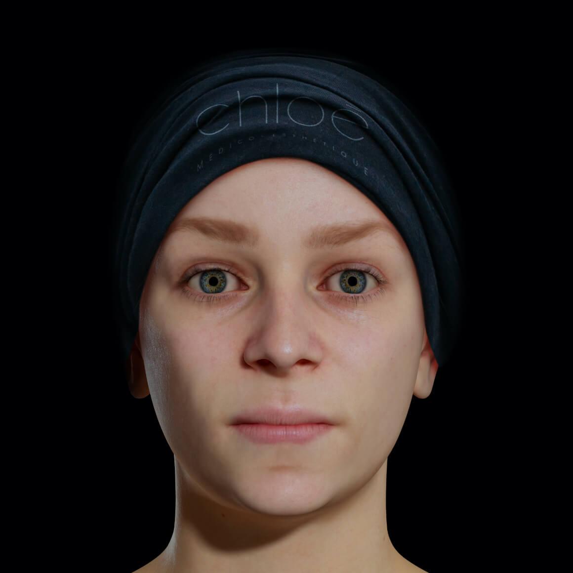 Une patiente de la Clinique Chloé avec une mâchoire peu définie vue de face
