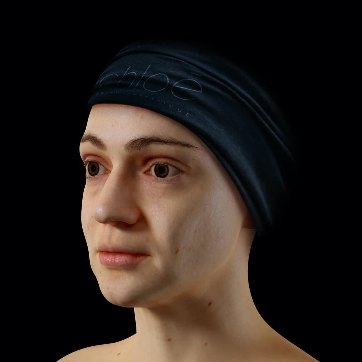 Patiente de la Clinique Chloé positionnée en angle après des traitements au laser Fotona 4D pour la définition de la mâchoire