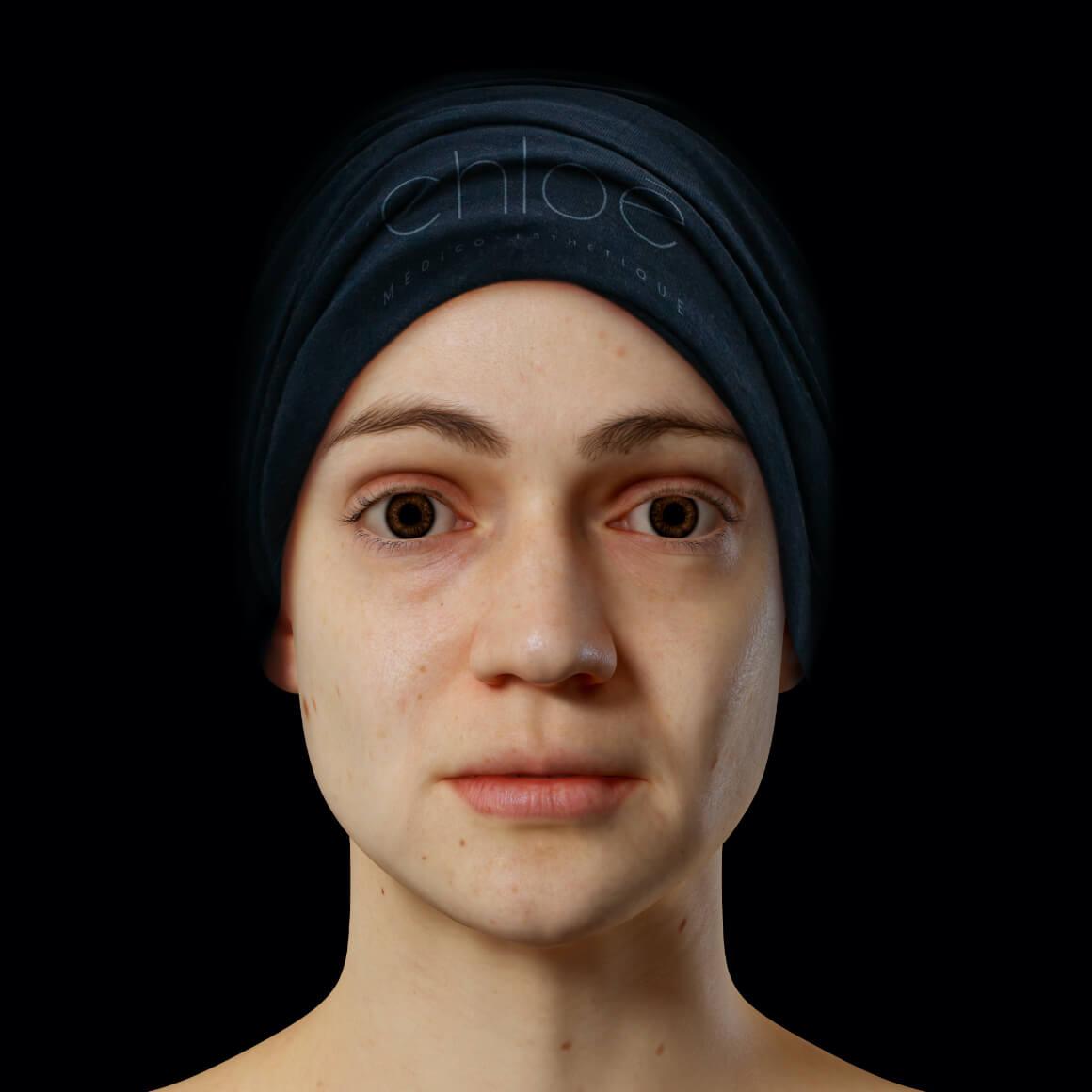 Patiente de la Clinique Chloé positionnée de face après des traitements au laser Fotona 4D pour la définition de la mâchoire