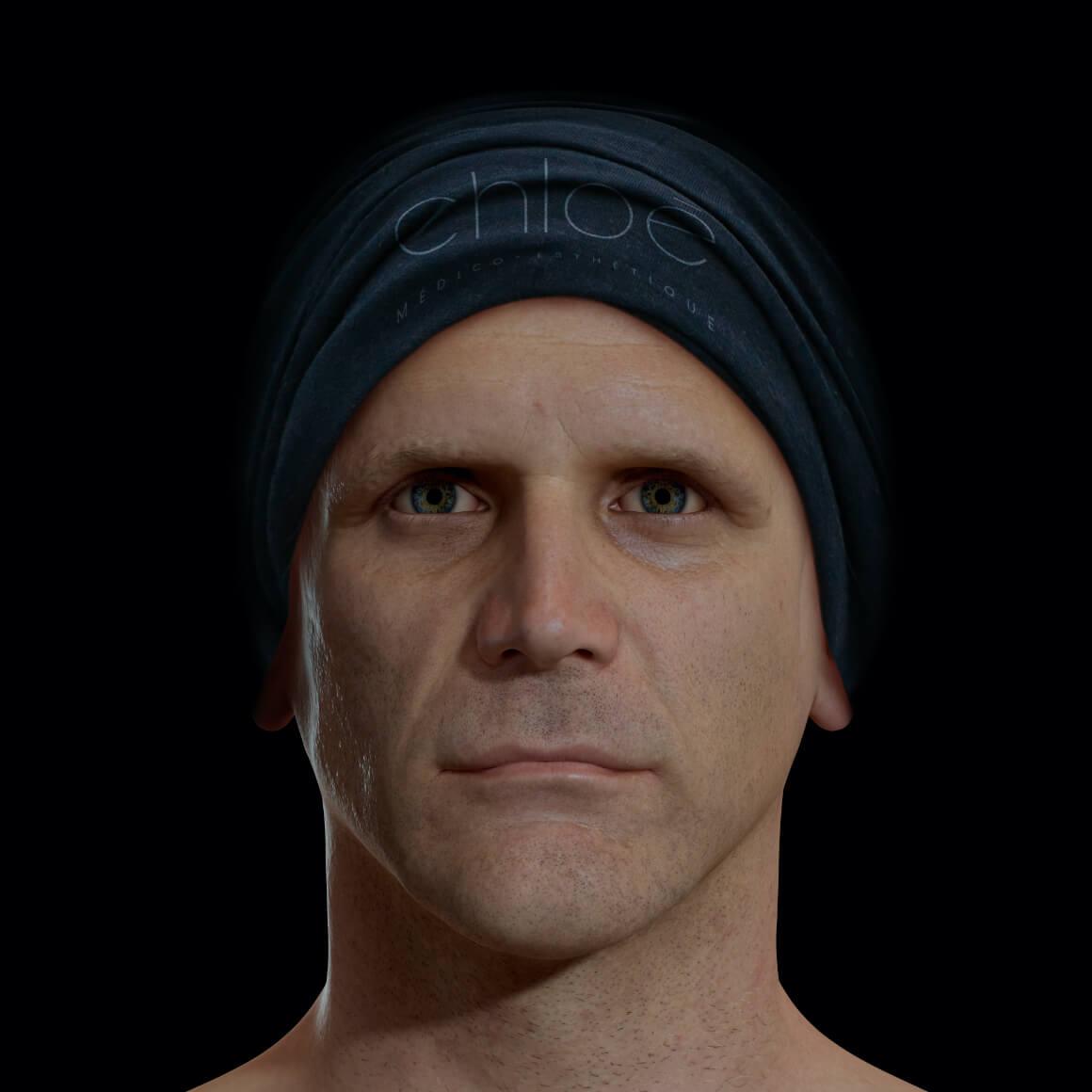 Patient de la Clinique Chloé positionné de face après un traitement Profound pour la définition de la mâchoire