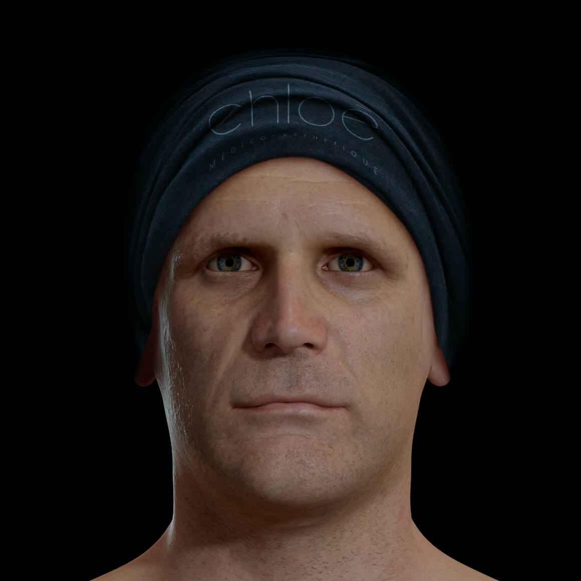 Patient de la Clinique Chloé positionné de face montrant une mâchoire peu définie