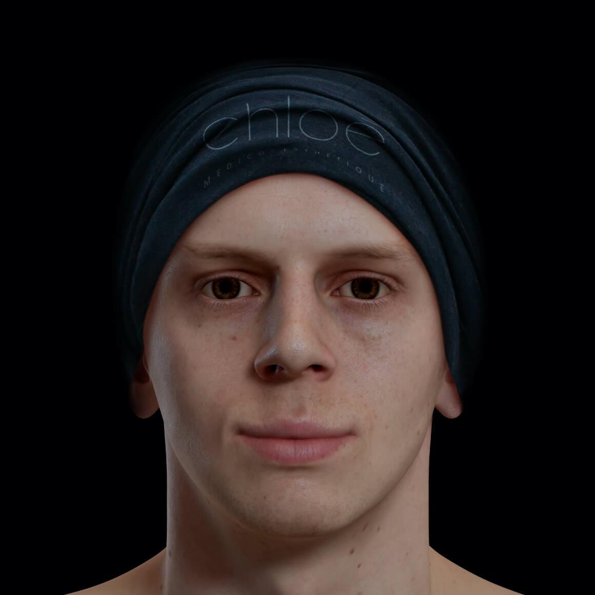 Patient de la Clinique Chloé positionné de face après des injections de Radiesse pour la définition de la mâchoire