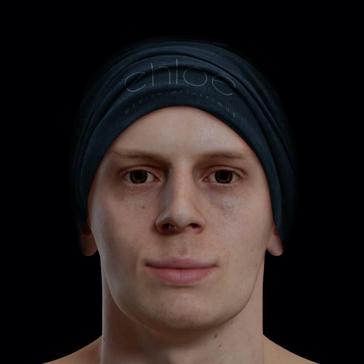 Patient de la Clinique Chloé positionné de face avec une mâchoire peu définie