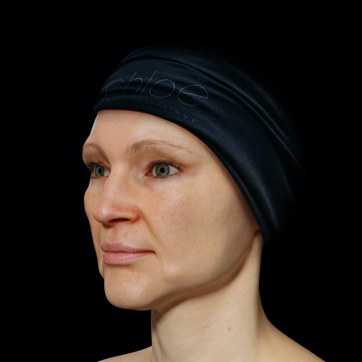 Patiente de la Clinique Chloé positionnée en angle après des traitements de Venus Legacy pour la définition de la mâchoire