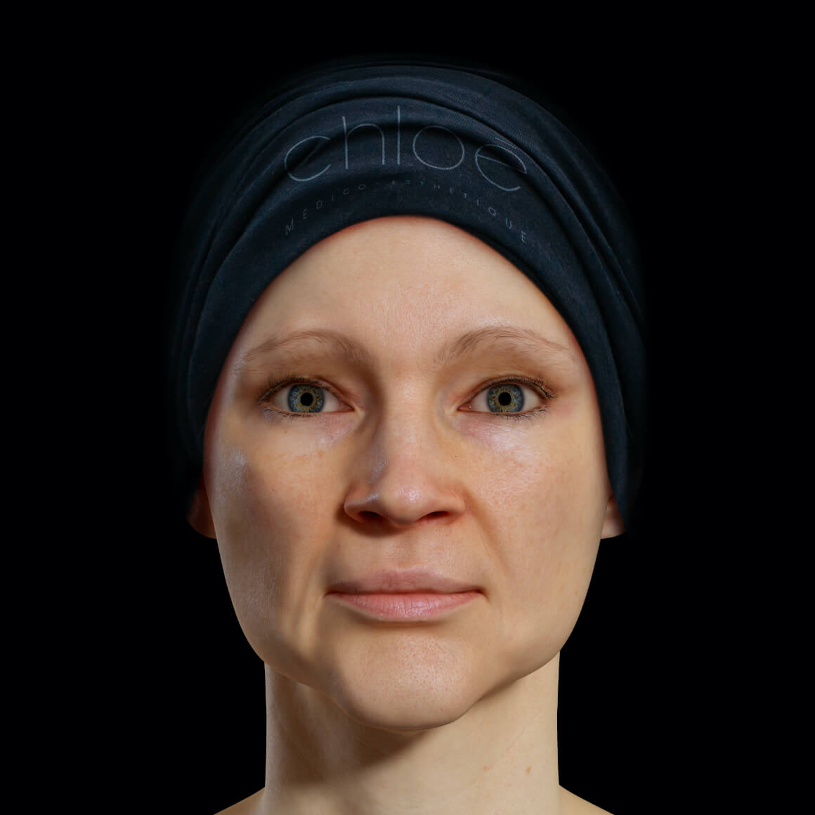Patiente de la Clinique Chloé positionnée de face après des traitements de Venus Legacy pour la définition de la mâchoire