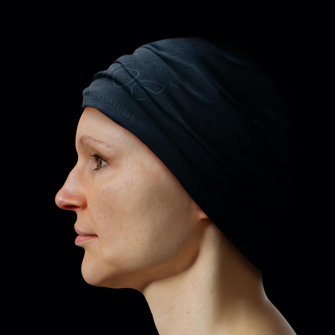 Patiente de la Clinique Chloé positionnée de côté après des traitements de Venus Legacy pour la définition de la mâchoire