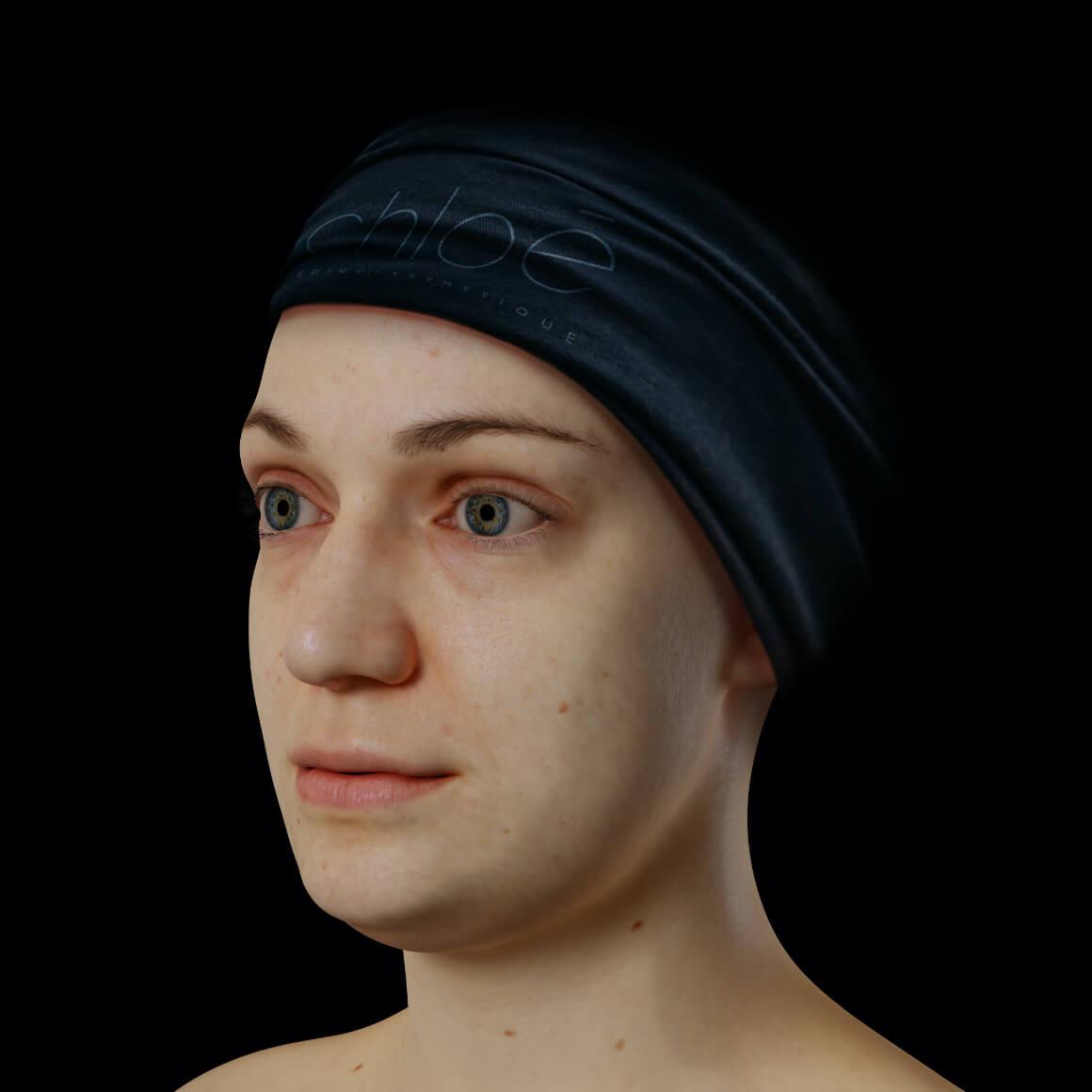 Patiente de la Clinique Chloé positionnée en angle après des traitements de Hot Sculpting pour le double menton