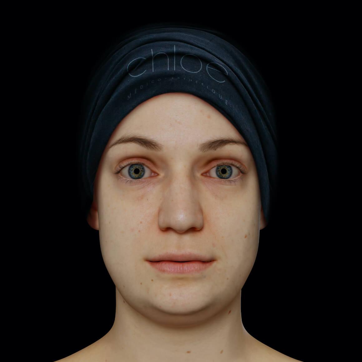 Patiente de la Clinique Chloé positionnée de face après des traitements de Hot Sculpting pour le double menton