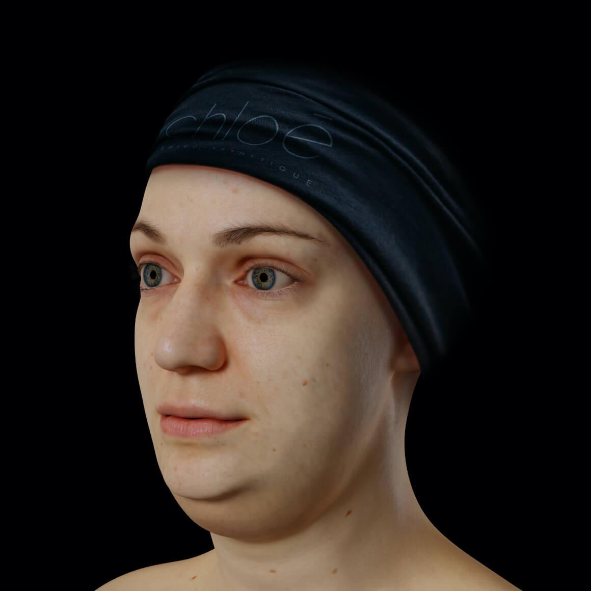 Patiente de la Clinique Chloé positionnée en angle ayant un double menton
