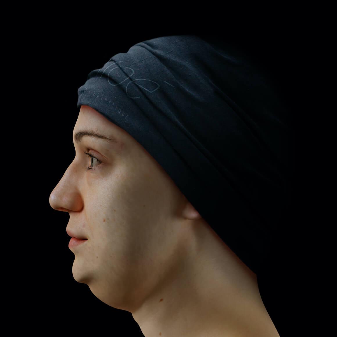 Patiente de la Clinique Chloé positionnée de côté ayant un double menton