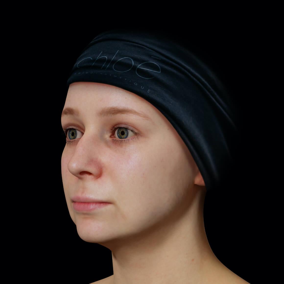 Patiente de la Clinique Chloé positionnée en angle après un traitement Profound pour le traitement du double menton
