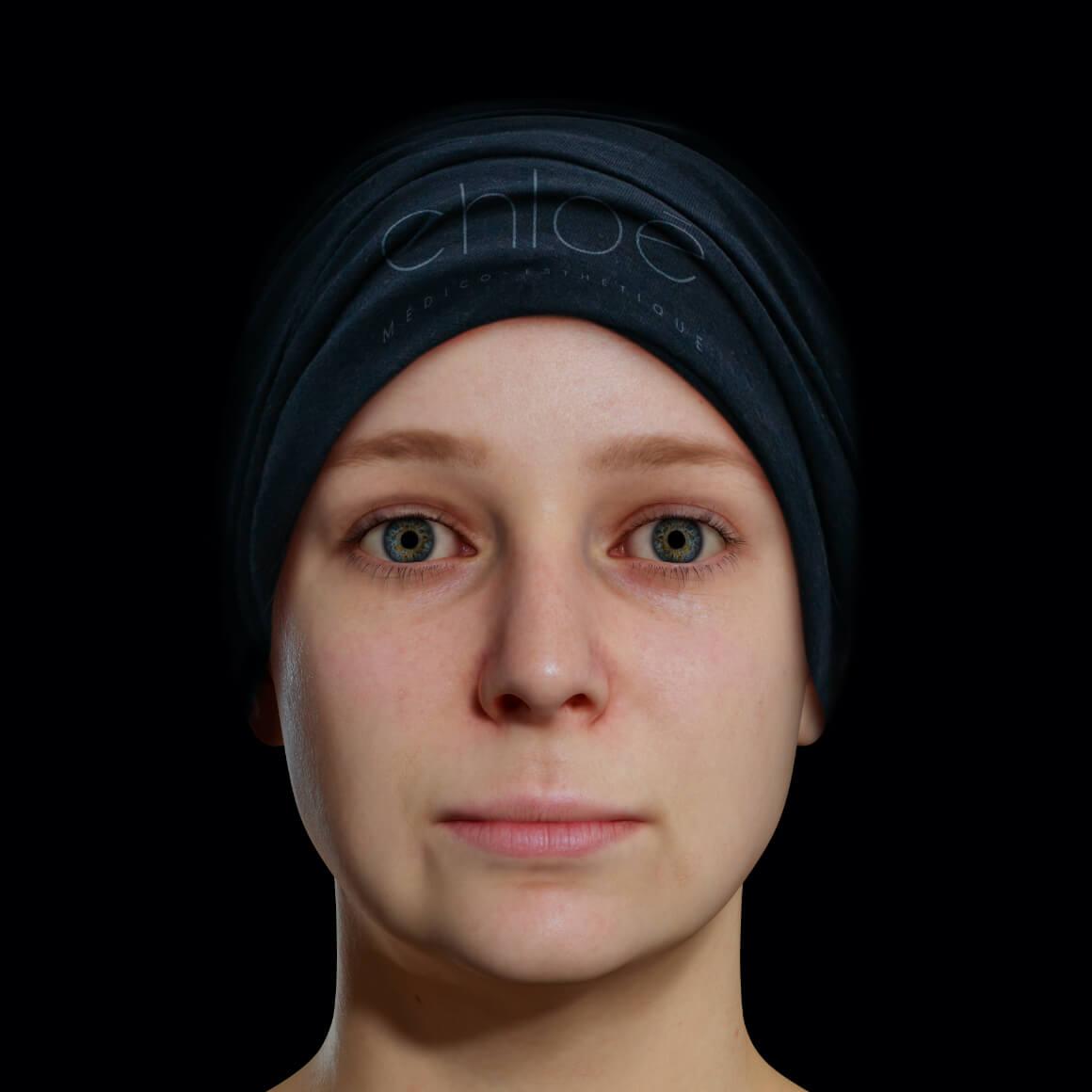 Patiente de la Clinique Chloé positionnée de face après un traitement Profound pour le traitement du double menton