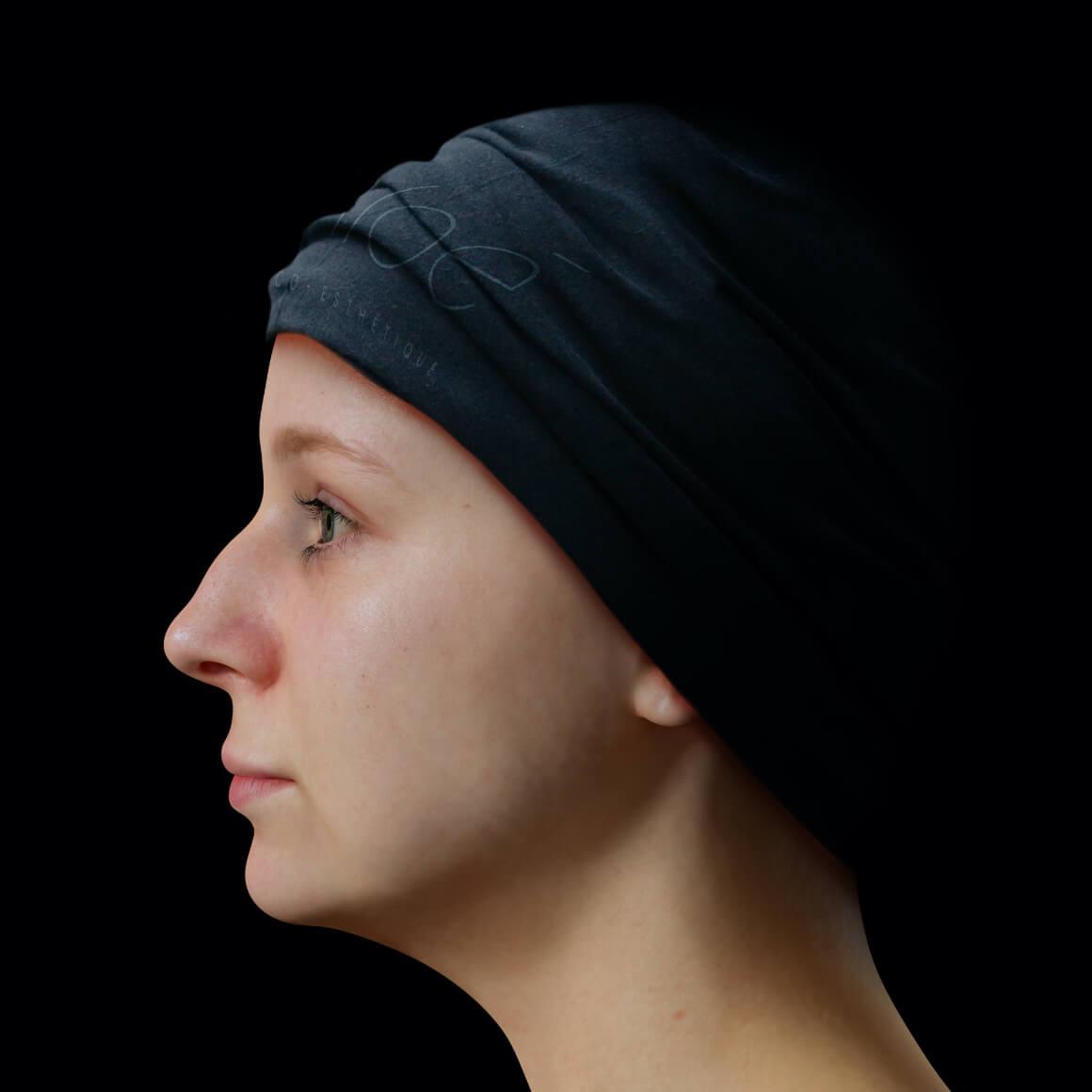Patiente de la Clinique Chloé positionnée de côté après un traitement Profound pour le traitement du double menton