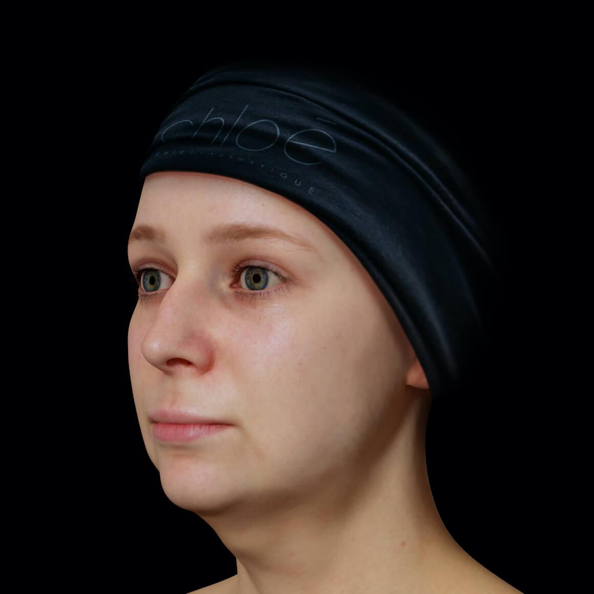 Patiente de la Clinique Chloé positionnée en angle aux prises avec un double menton