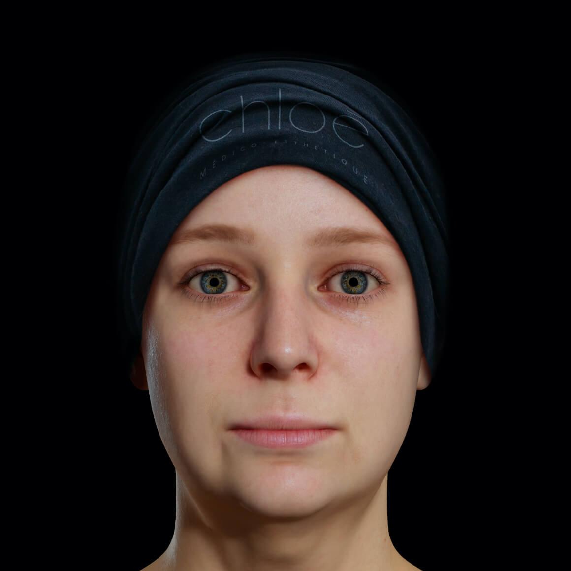 Patiente de la Clinique Chloé positionnée de face aux prises avec un double menton
