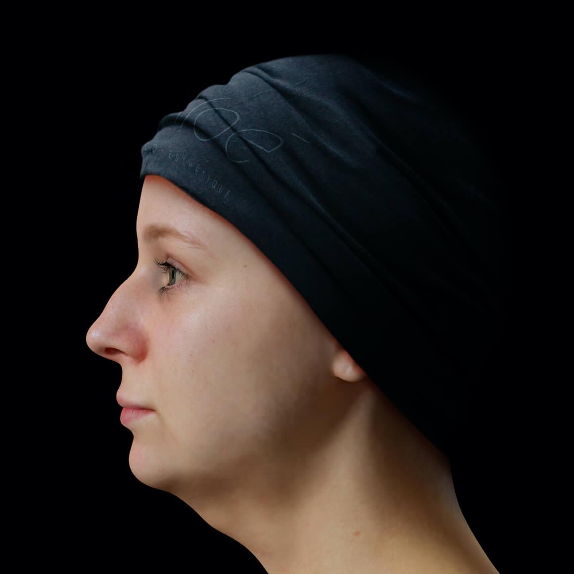 Patiente de la Clinique Chloé positionnée de côté aux prises avec un double menton