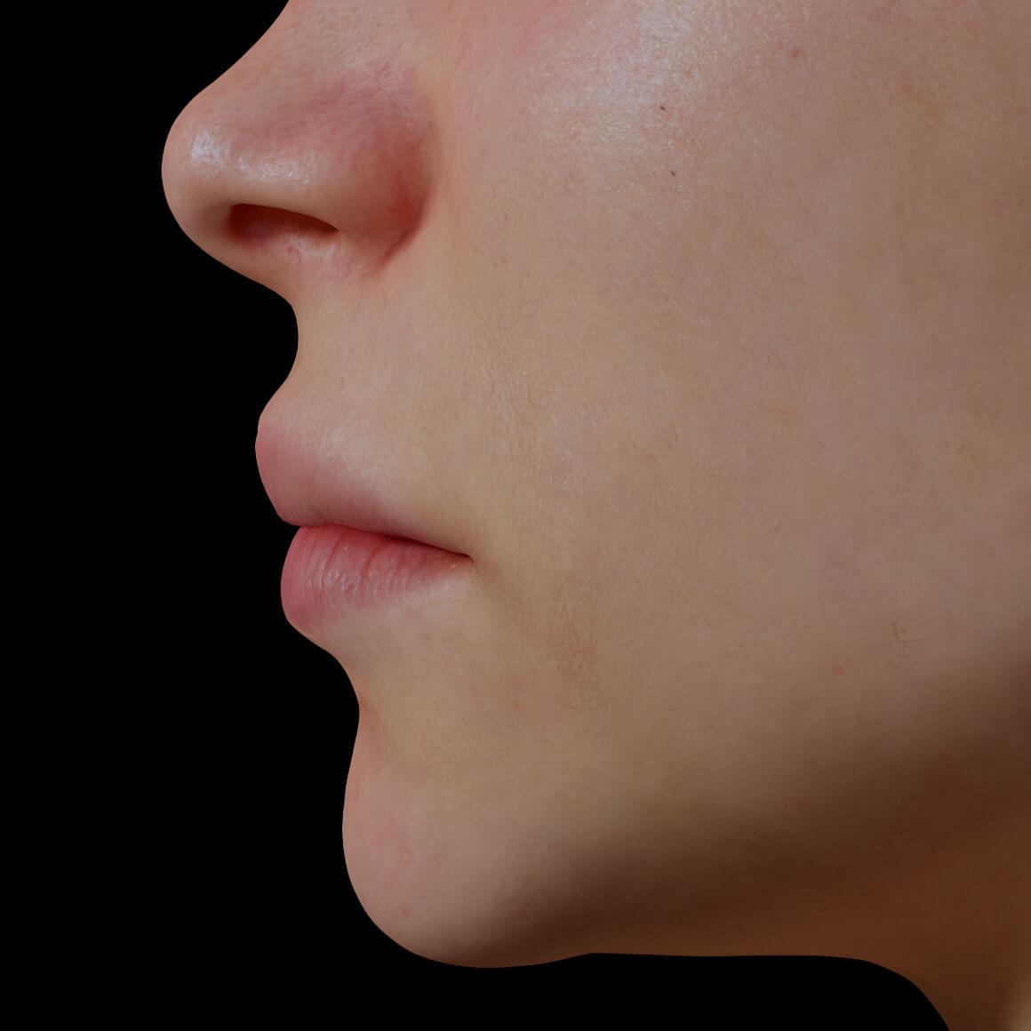 Patiente de la Clinique Chloé de côté après des injections d'agents de comblement pour augmenter le volume des lèvres