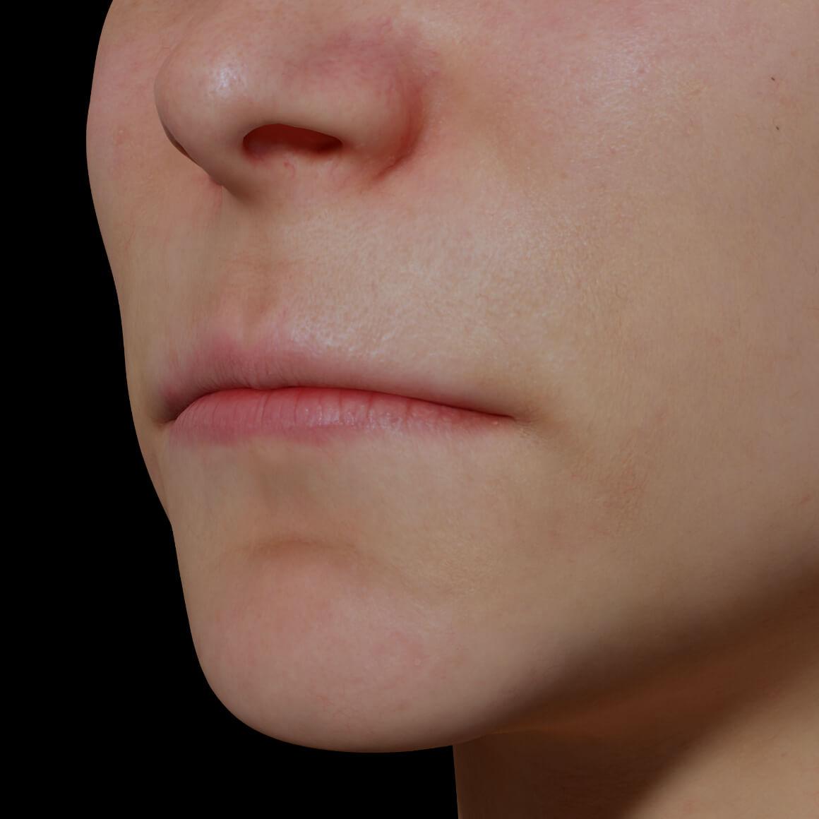 Patiente de la Clinique Chloé positionnée en angle démontrant des lèvres minces et peu volumineuses