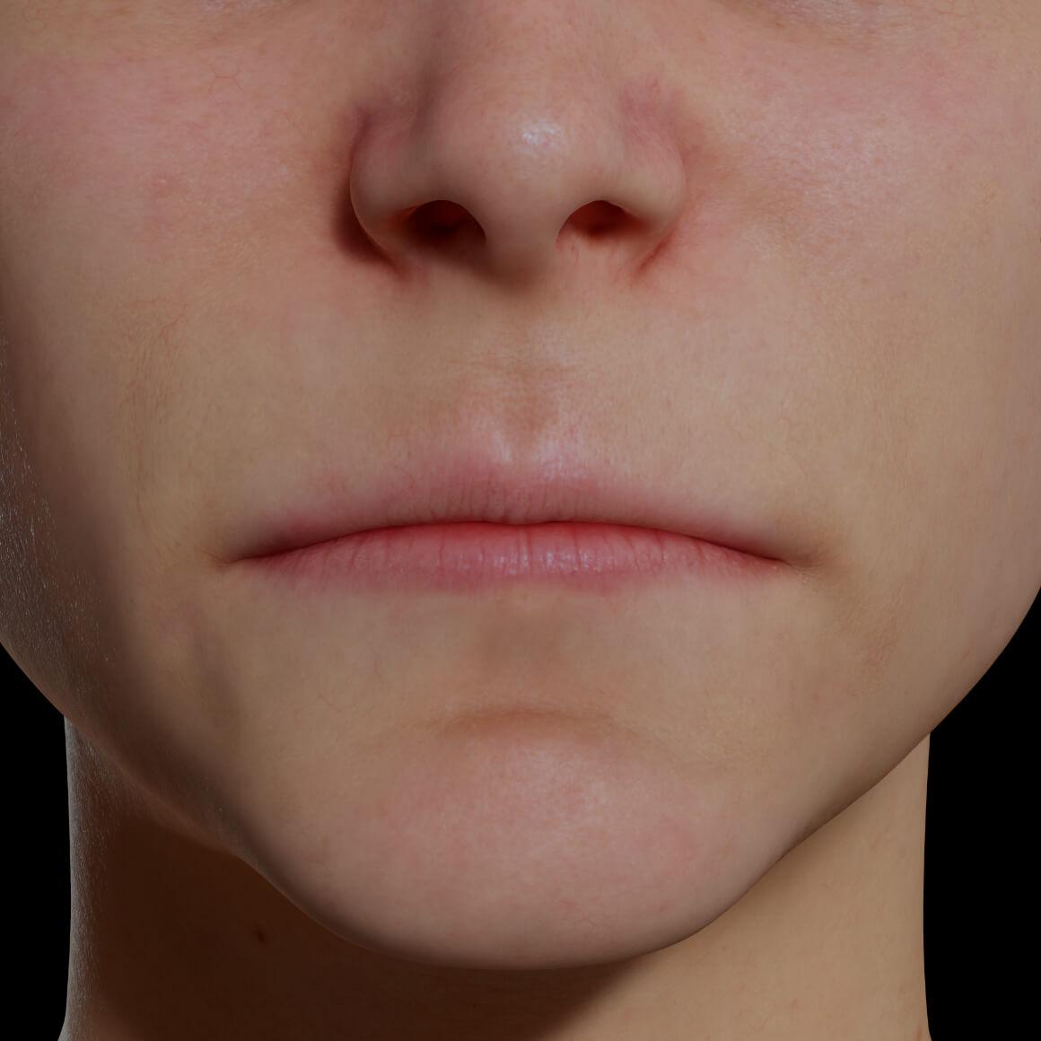 Patiente de la Clinique Chloé positionnée de face démontrant des lèvres minces et peu volumineuses