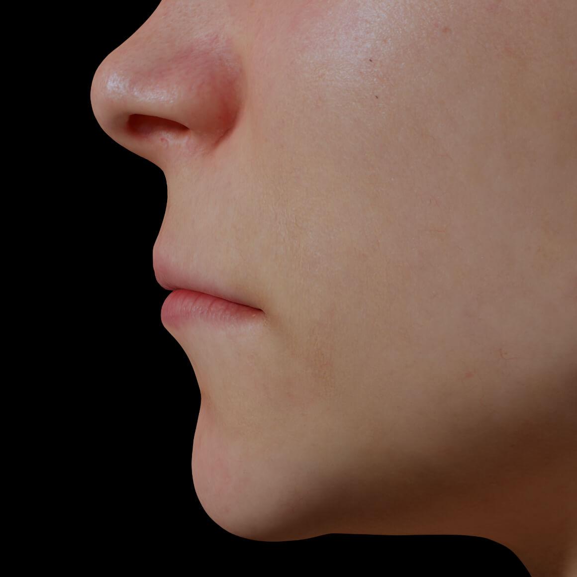 Patiente de la Clinique Chloé positionnée de côté démontrant des lèvres minces et peu volumineuses