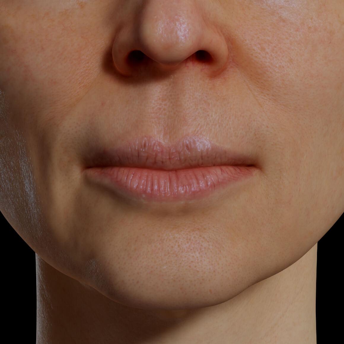 Patiente de la Clinique Chloé positionnée de face démontrant des lèvres sèches