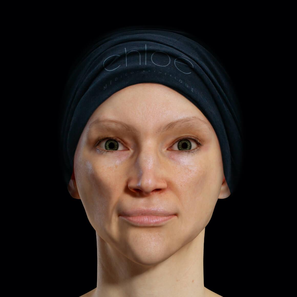 Patiente de la Clinique Chloé positionnée de face après des traitements au laser fractionné pour effacer le mélasma