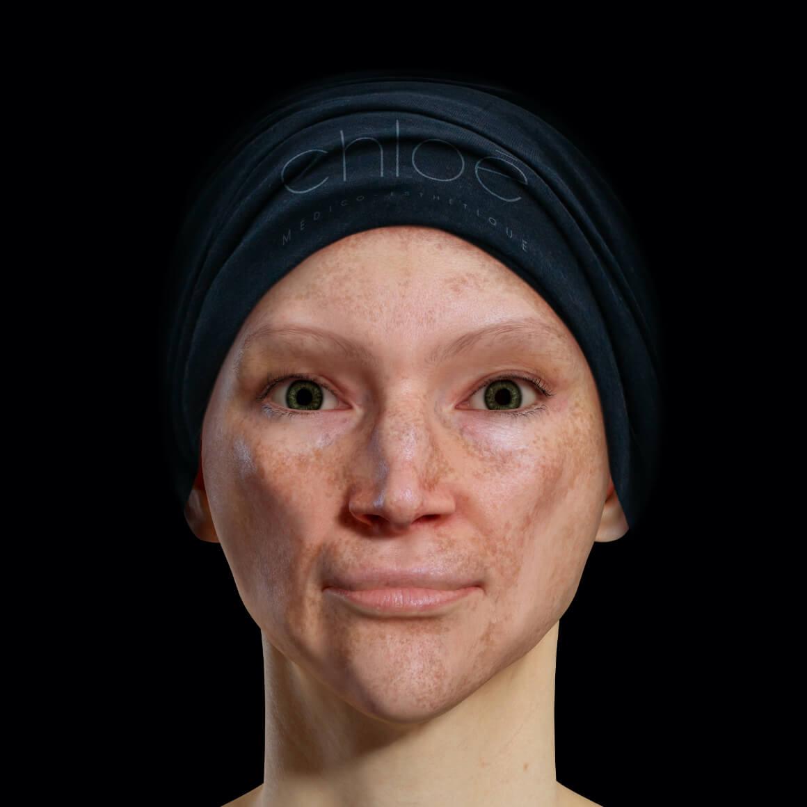 Patiente de la Clinique Chloé positionnée de face aux prises avec du mélasma