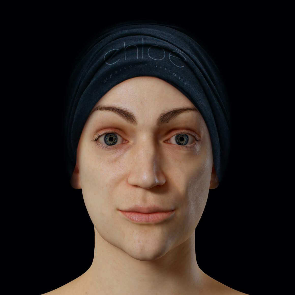 Patiente de la Clinique Chloé positionnée de face après des traitements de microneedling pour effacer le mélasma