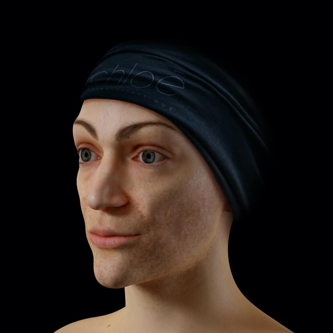Patiente de la Clinique Chloé positionnée en angle montrant du mélasma sur son visage