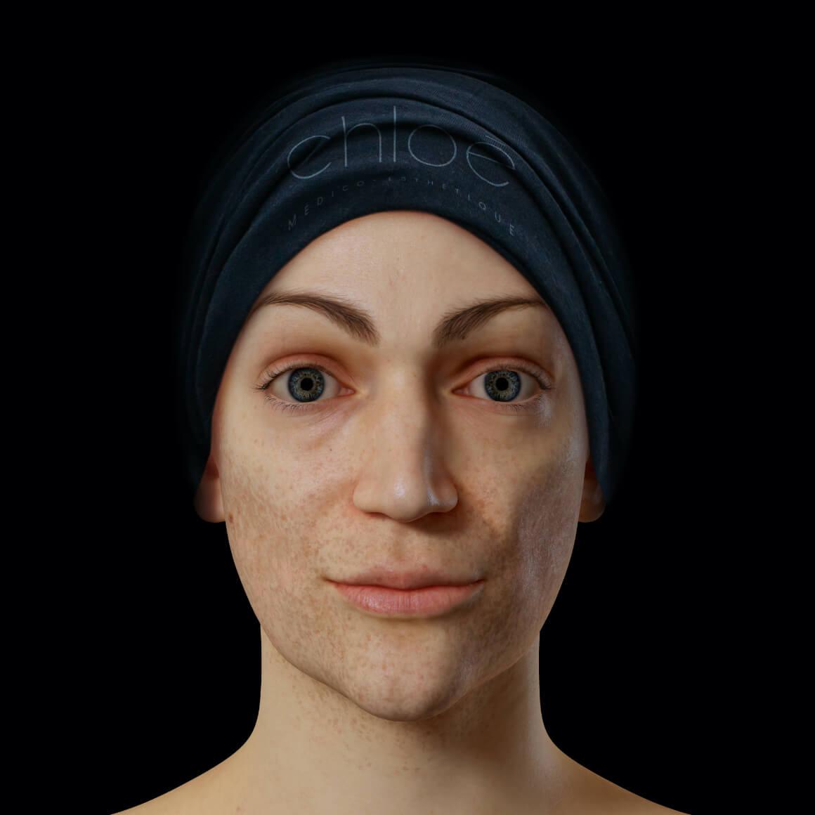 Patiente de la Clinique Chloé positionnée de face montrant du mélasma sur son visage