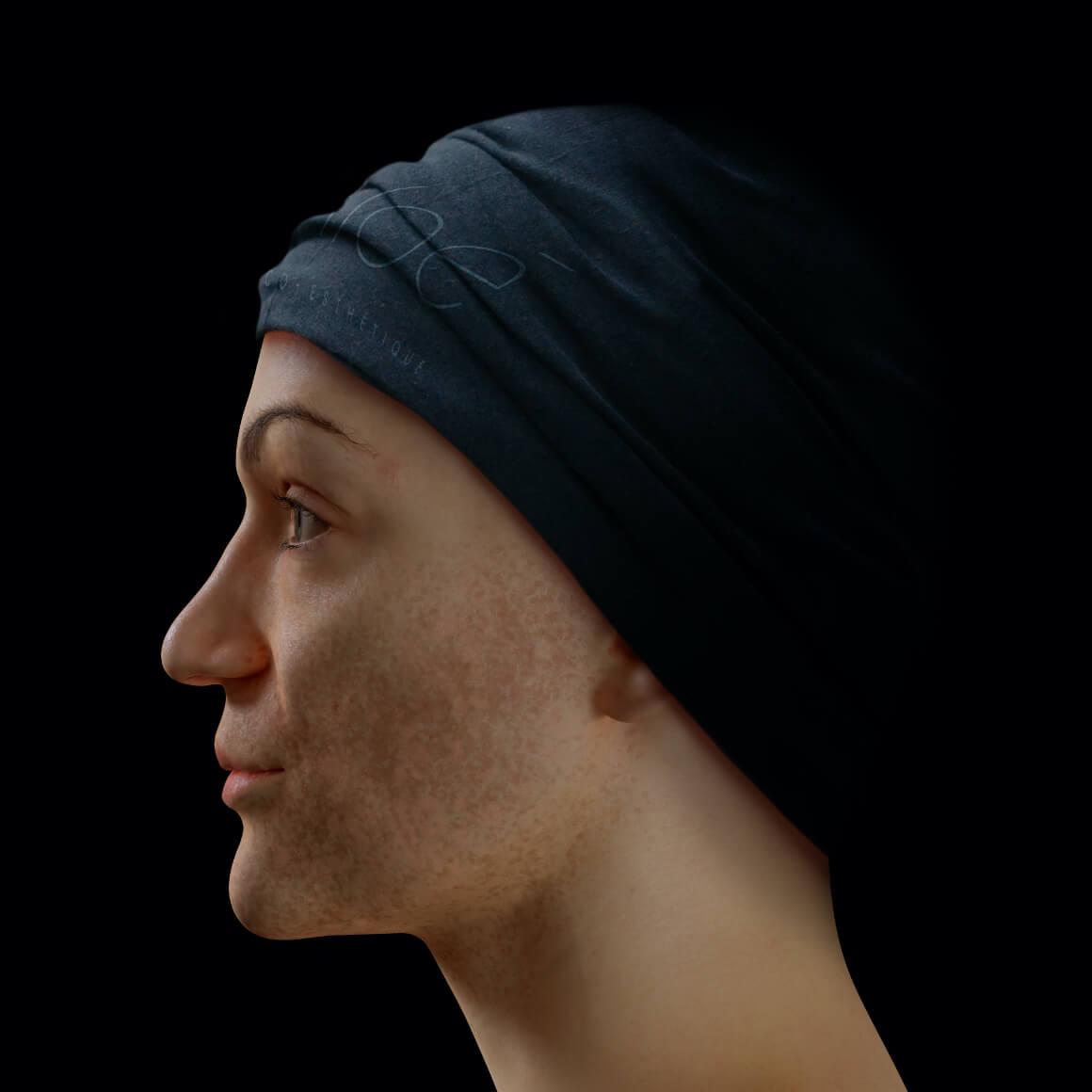 Patiente de la Clinique Chloé positionnée de côté montrant du mélasma sur son visage