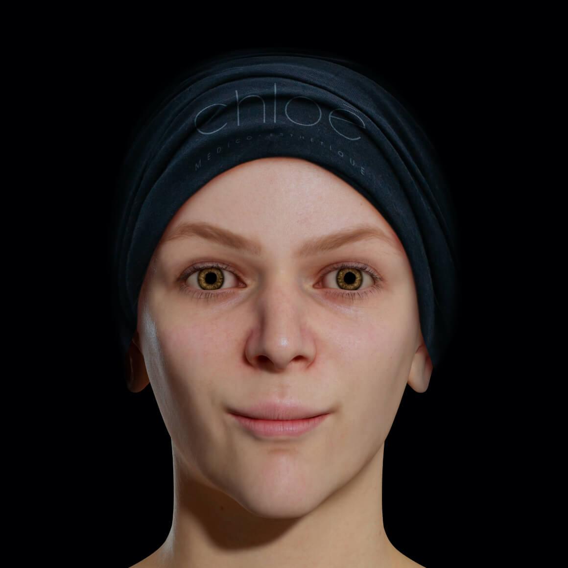Patiente de la Clinique Chloé positionnée de face après des traitements de peelings chimiques pour effacer le mélasma