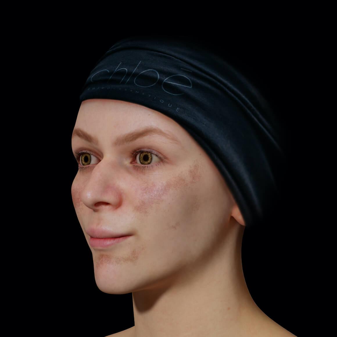 Patiente de la Clinique Chloé positionnée en angle aux prises avec du mélasma sur le visage