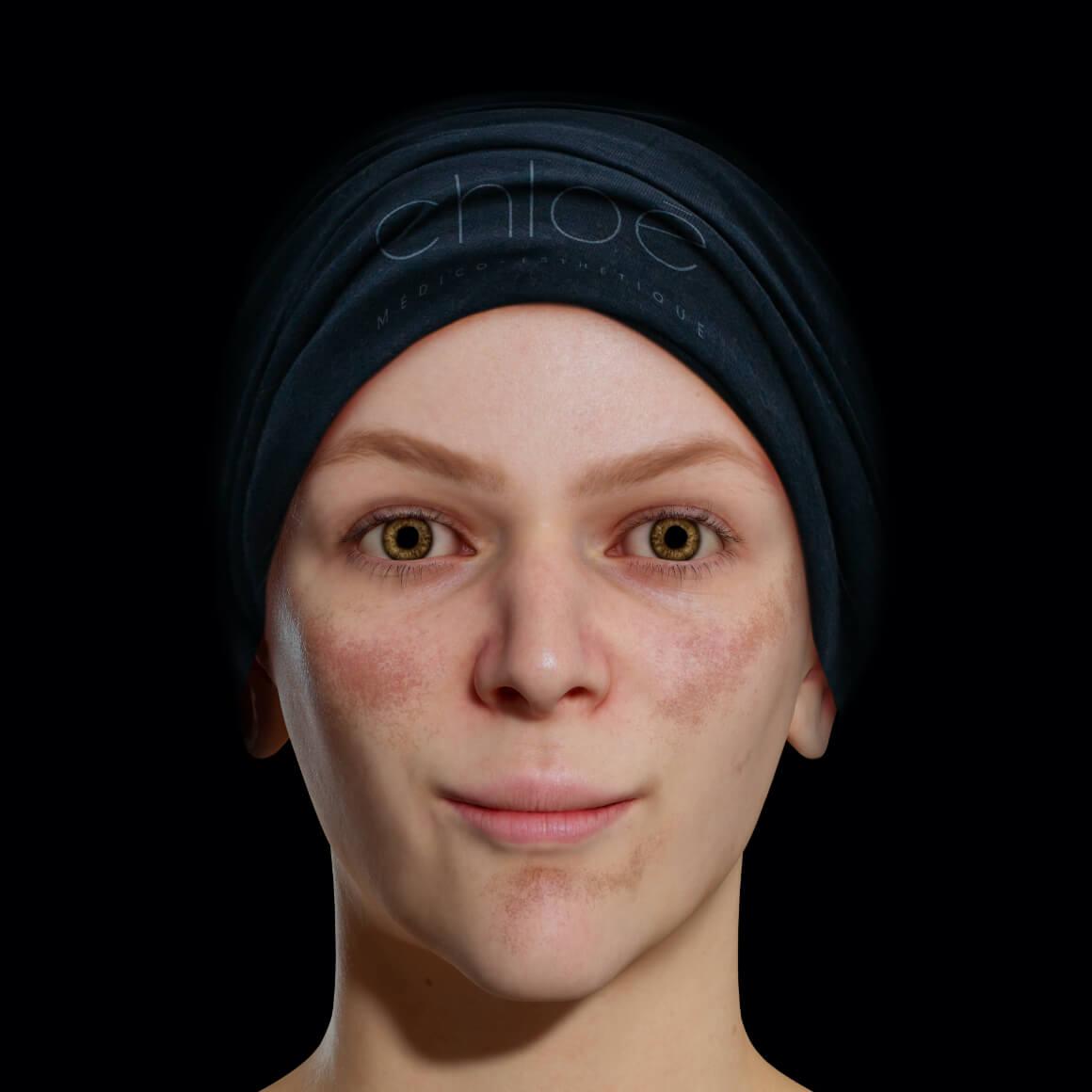 Patiente de la Clinique Chloé positionnée de face aux prises avec du mélasma sur le visage