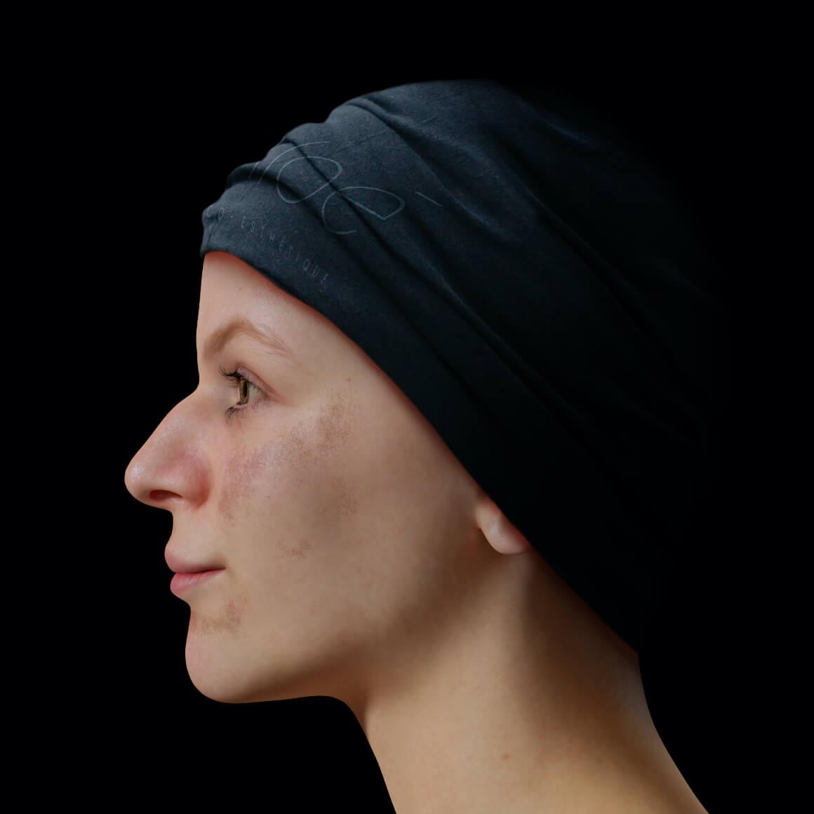 Patiente de la Clinique Chloé positionnée de côté aux prises avec du mélasma sur le visage