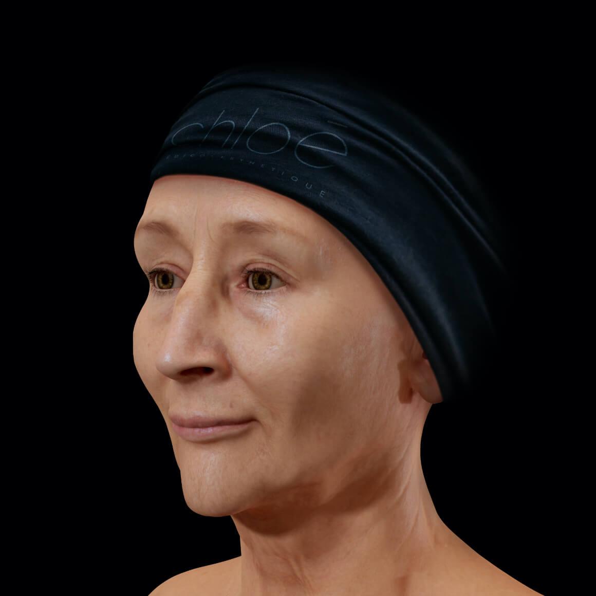 Femme patiente à la Clinique Chloé vue en angle après des traitements de photorajeunissement IPL pour le mélasma