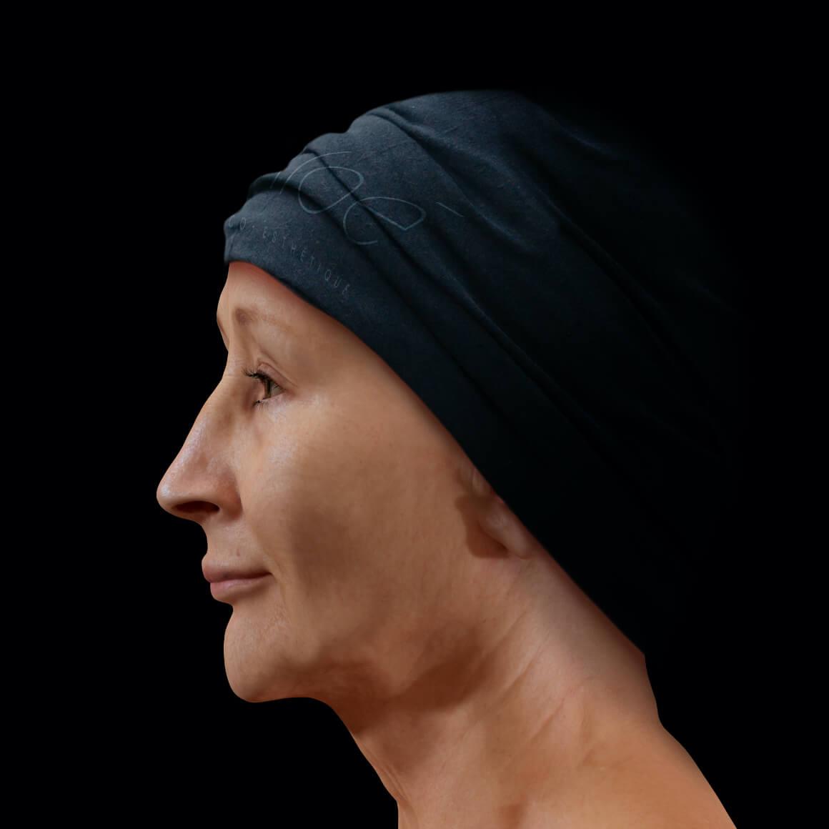 Femme patiente à la Clinique Chloé vue de côté après des traitements de photorajeunissement IPL pour le mélasma