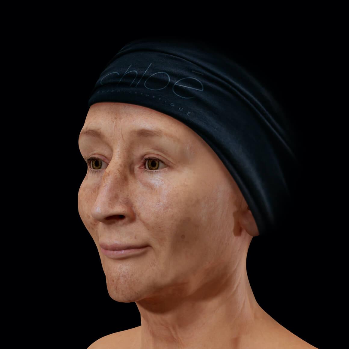 Femme patiente à la Clinique Chloé vue en angle arborant du mélasma sur le visage